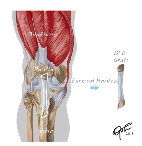 Surgical Harvest of Bone Patellar Bone (BTB) Graft