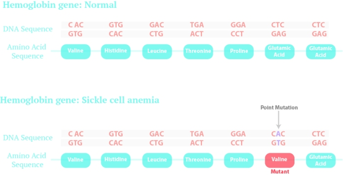 "Sickle cell anemia is caused by a point mutation in the genetic sequence for the hemoglobin gene. This point mutation puts the amino acid ""Valine"" in place of ""Glutamic Acid"" in the amino acid chain"