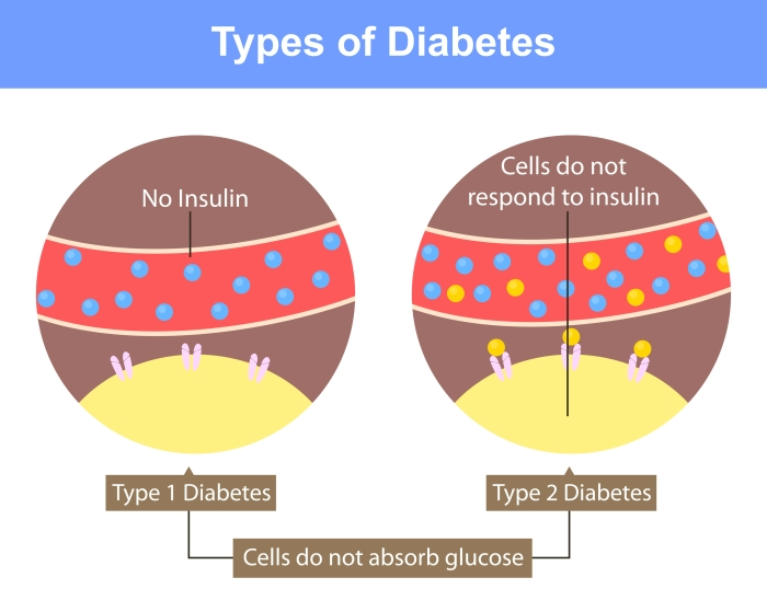 Illustration depicting the difference between the types of diabetes. In type I, there is a lack of insulin. In type II, there is sufficient insulin, but the cells are resistant to it.
